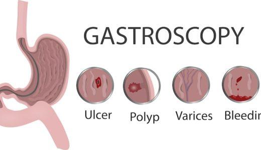 カテーテル 尿 女性 管 痛み